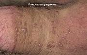 Заражение вирусом папилломы (ВПЧ). Способы и пути инфицирования. Заразно ли ВПЧ?