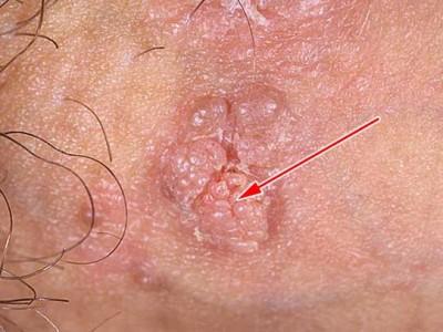 Аногенитальные бородавки что это такое