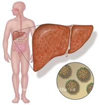 гепатит с и вич лечение