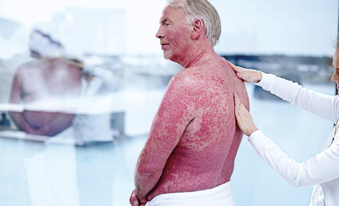 Лечение псориаза в Турции