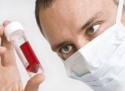 кровь на вич инфекции