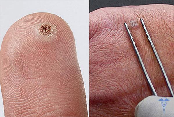 Что такое папиллома на руке