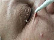 папиллома человека лечение