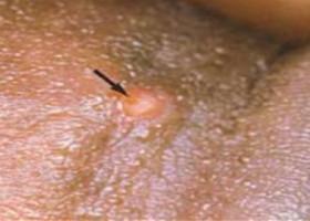 Как проявляется ВПЧ у мужчин? Опасен ли вирус папилломы для мужчин?