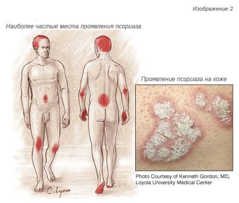 simptom-psoriaza-u-muzhchin