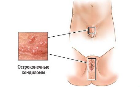 Бородавки и папилломы на шее лечение фото