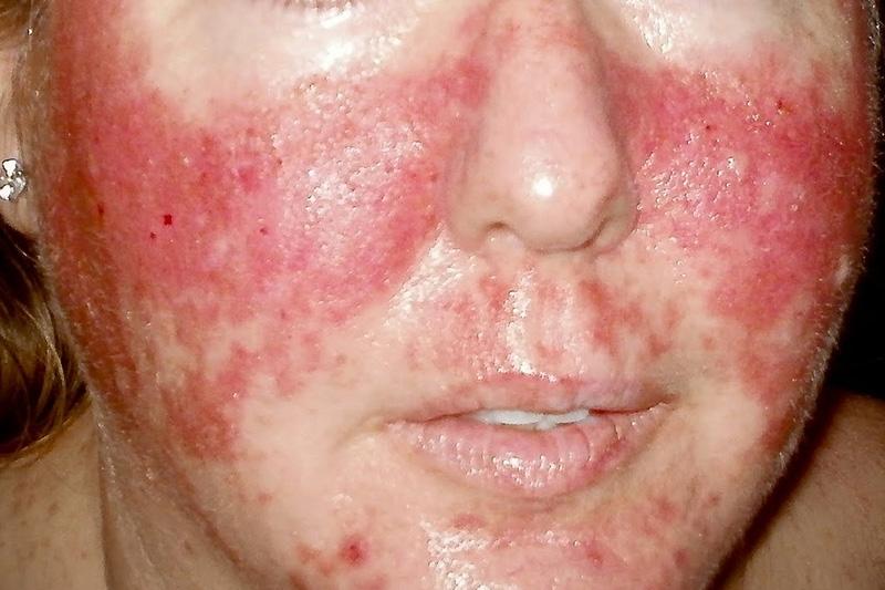 симптомы заражения паразитами человека лечение
