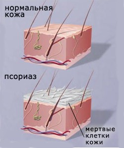Симптомы псориаза в зависимости от вида патологии