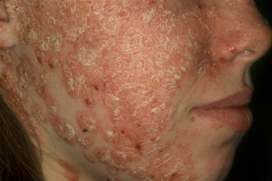 мазь от аллергии гидрокортизоновая цена