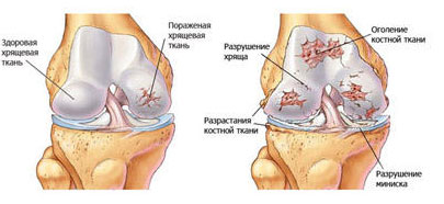 Псориаз суставов симптомы расслаивающийся остеохондрит у собак плечевого сустава
