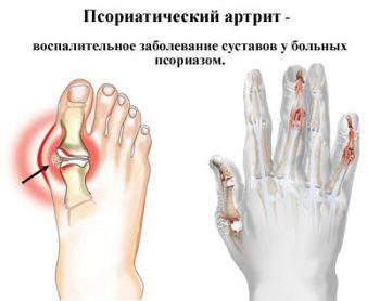 gde-lechat-psoriazniy-artrit-v-ufe