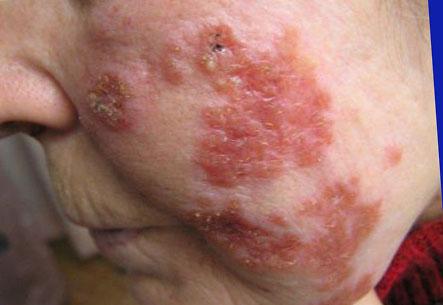 симптомы вич фото на коже