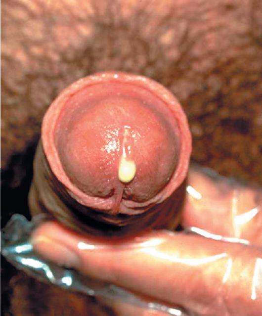 Как увеличить пенис дома условиях