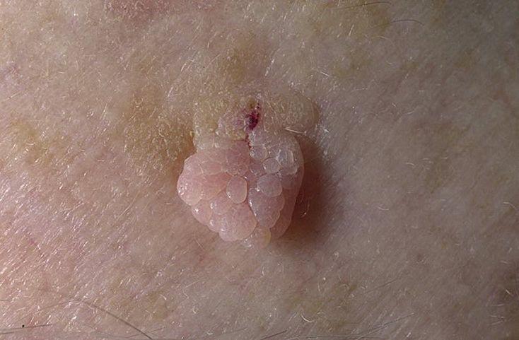 Вирус папилломы человека воронеж