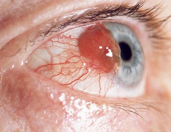 Сперма попала в глаз риск заражения
