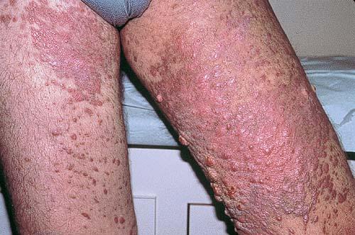 паразиты в носу человека симптомы как избавиться