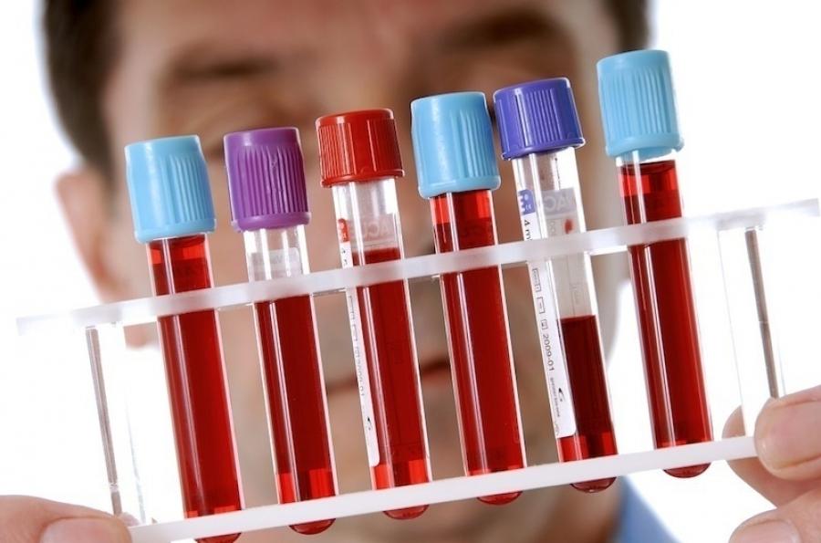 какие берут анализы на аллергию