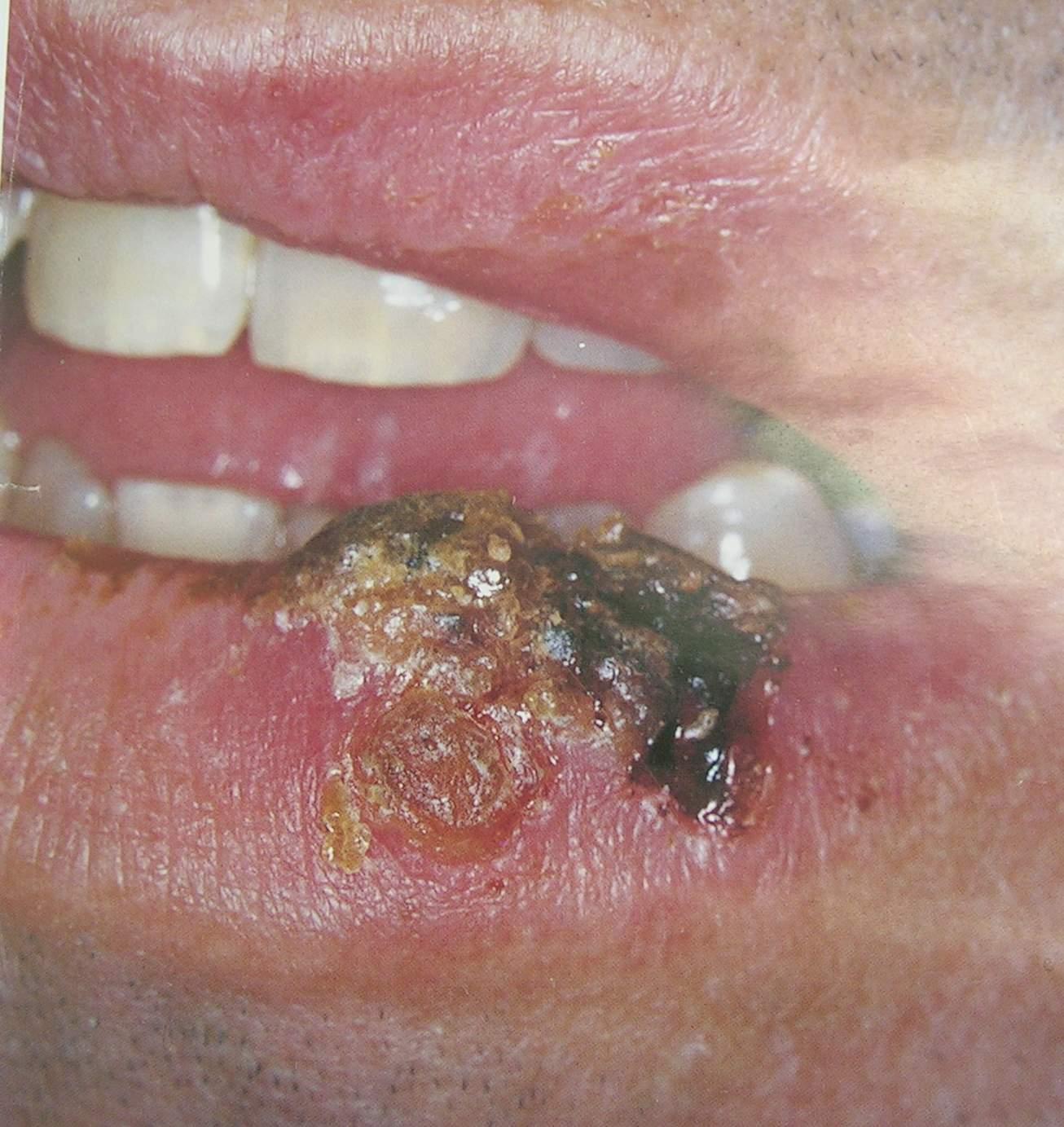 Первые признаки псориаза у детей симптомы и лечение у подростков фото