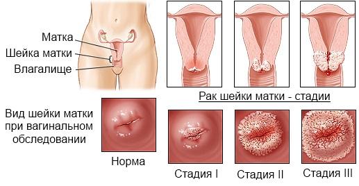 Беременность при впч 16 18