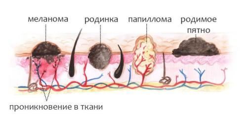 симптомы заражении паразитами человека лечение