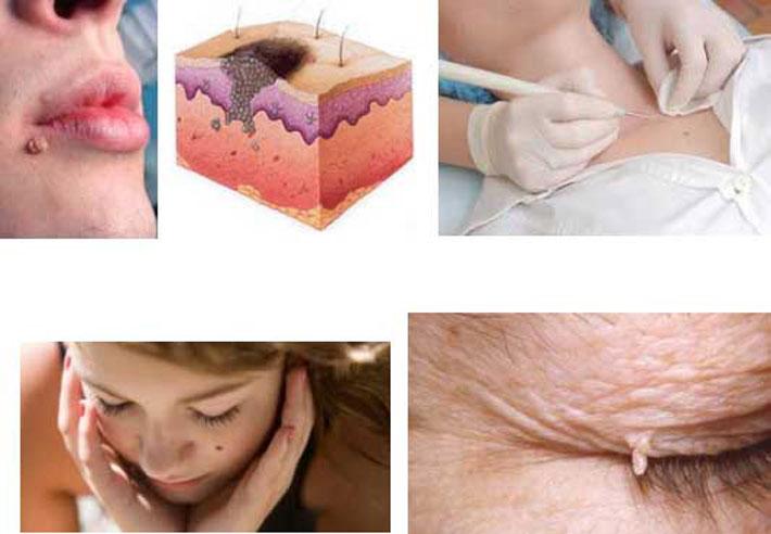 микоплазма препарат для лечения