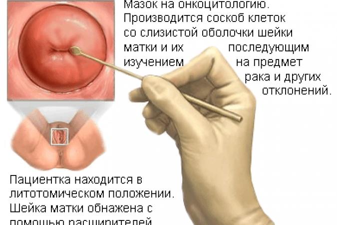 папилломы признак паразитов в организме лечение