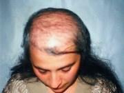 выпадение волос при вич инфекции