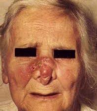 Венерическое заболевание сифилис - последствия