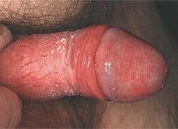zud-v-polovih-organah-posle-seksa