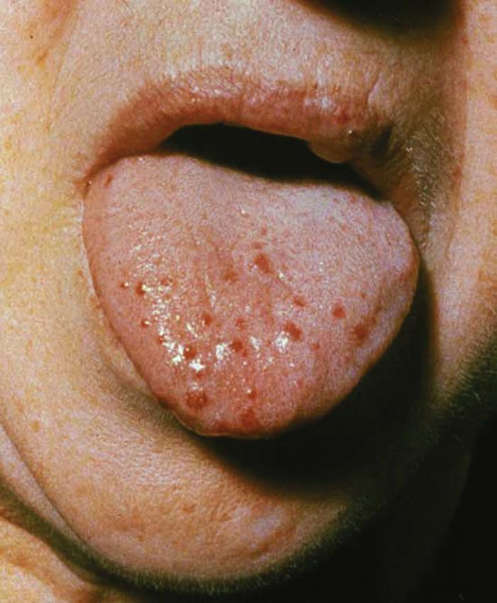 Уреаплазмоз, уреаплазма: инфекция, болезнь, заболевание, вирус генитальный в медицине (urealyticum)