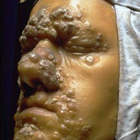 Диагностика первичного, вторичного, третичного сифилиса