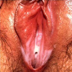 Гарднереллез у женщин – симптомы, причины, лечение
