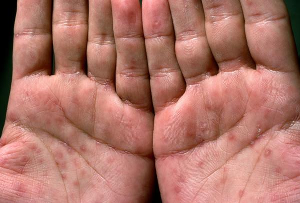 Венерическое заболевание сифилис - признаки и симптомы