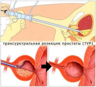 Лечение простатита после уреаплазмы