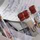 Сдать анализ уреаплазма что кровь лучше мазок