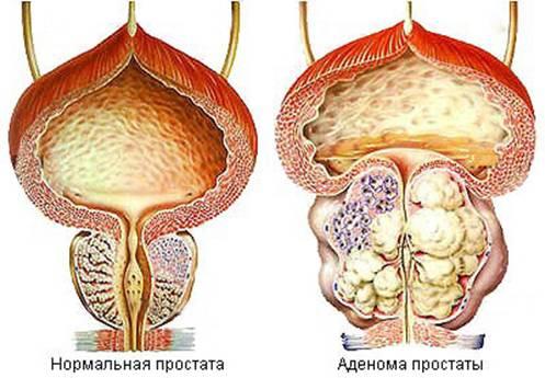 Метастазы в кости рак предстательной железы