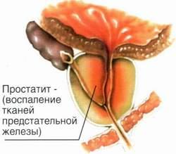Крапива и хронический простатит