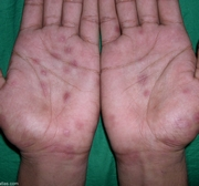 Причины возникновения псориаза на руках