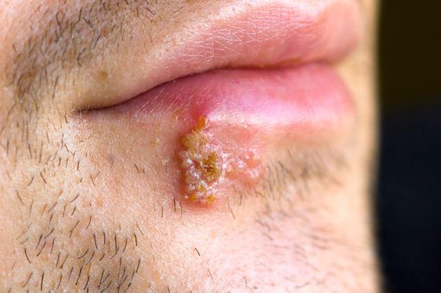 Вирус герпеса - простуда на губах, (на верхней и нижней, в уголках,под губой или возле)