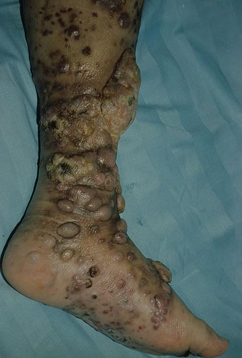 знакомства людей больных сифилисом