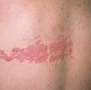 Герпес на спине: фото, симптомы, лечение и причины заболевания
