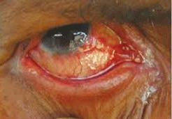 хламидии у женщин симптомы и фото