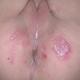 Повышенная температура от гормональных контрацептивов