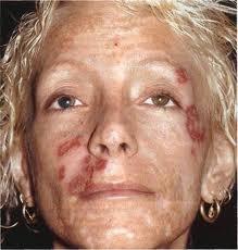 уреаплазма микоплазма лечение у женщин препараты