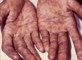 Первые признаки сифилиса
