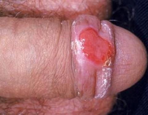 syfilis penis