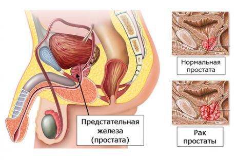 Термотерапия предстательной железы.
