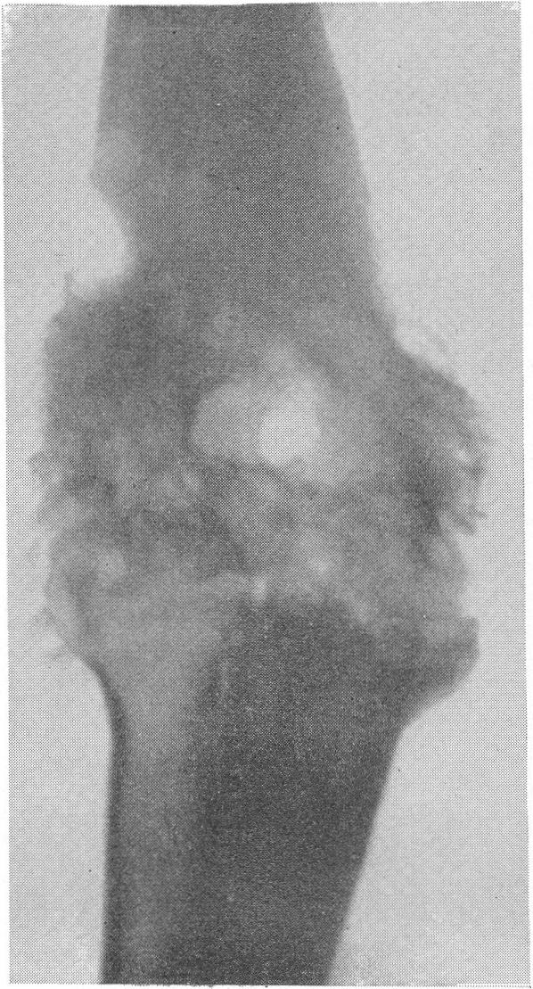 боль в локте при сифилисе том