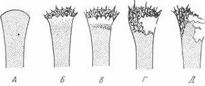 Изображение - Сифилитический поражение коленного сустава sifilis-kostey-sustavov3