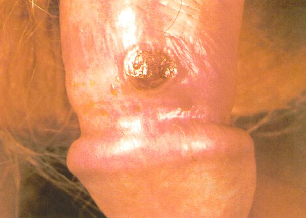 Penis skin peeling